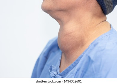 Enlarged multinodular thyroid goiter in middle-aged Asian female.By being healed in the hospital To get a goiter surgery soon