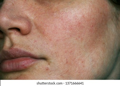 enlarged pores of the face, problem skin
