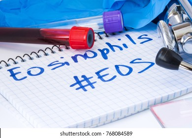 Eosinophils count procedure (Eos) white blood cell test. Laboratory test tubes with blood, stethoscope, smear or film and gloves are near note with text Eosinophils (Eos) on table in doctor office