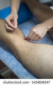 EPI Intratissue Percutaneous Electrolysis dry needling physical therapy medical treatment.