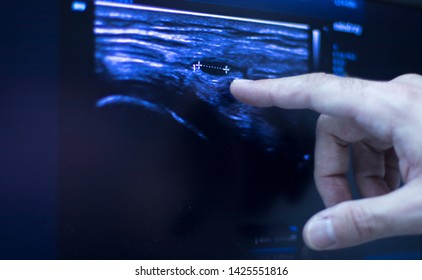 EPI Intratissue Percutaneous Electrolysis dry needling ultrasound ecography scan  physiotherapy medical treatment.
