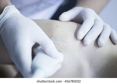 EPI percutaneous intratissue electrolysis scan to aid dry needling acupunture physiotherapy physical therapy treatment of patient in clinic.