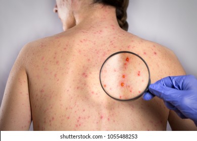epidemic Rubella viral infection concept. skin bubble rash