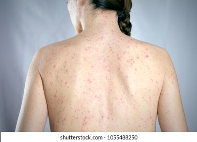epidemic viral infection psoriasis concept. girls back skin rashes