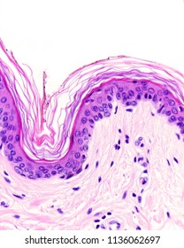 Epidermis of the thin skin showing the stratum basale, very narrow stratum spinosum and granulosum and a superficial well defined stratum corneum. The epidermis rest over the dermis.