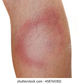 An Erythema Migrans rash often seen in the early stage of Lyme disease. It can appear after a tick or mosquito bite. It is an actual skin infection with the Lyme bacteria, Borrelia burgdorferi.