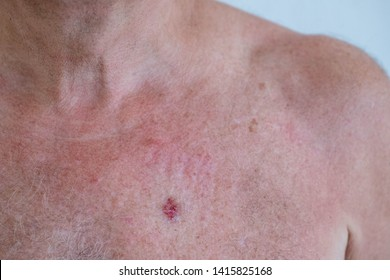 A european man chest with Basal-cell carcinoma (BCC) also known as basal-cell cancer is the most common type of skin cancer, Applying a cream is used to treat skin conditions.