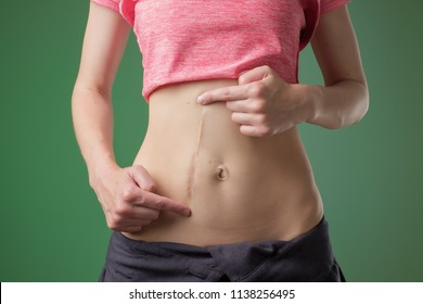 European woman with long abdominal scars after operation standing on green color