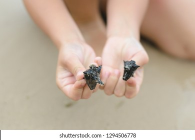 Every adult hand has spikes