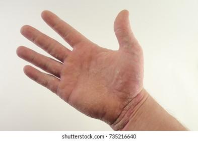 exacerbation of psoriasis in the hands