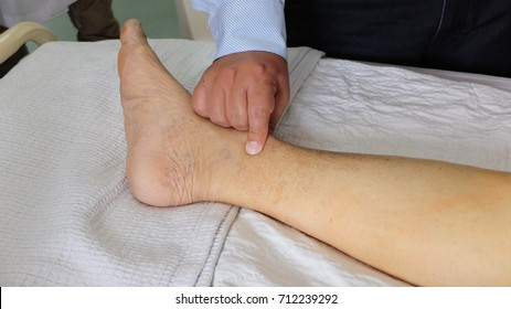Examination for Pedal Oedema. Pressing the medial side of leg just above the medial malleolus.