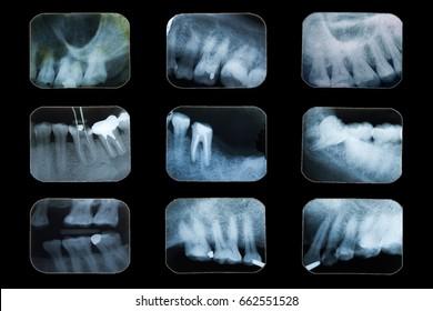 Examination teeth, Dental x-ray film on black background.