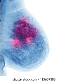examining breast mastopathy or cancer on white background