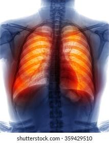 examining a lung radiography , xray