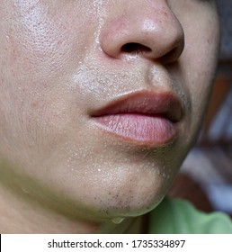 Excessive sweating or hyperhidrosis and oily skin of Southeast Asian, Myanmar or Chinese adult young man. Also known as polyhidrosis or sudorrhea. Lateral view.