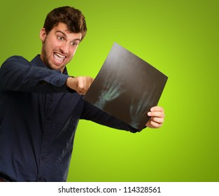 Excited Young Man Looking At X Ray On Green Background