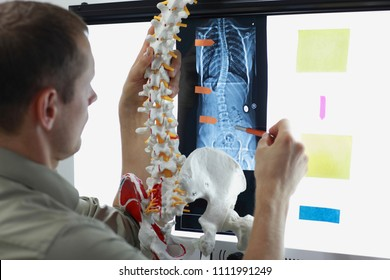 expert with  model  of spine watching image of chest  at x-ray film viewer.  Scoliosis - Diagnosis,treatment planning