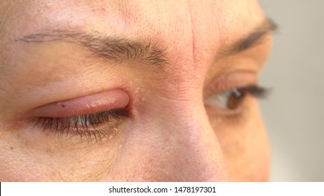 External Eyelid Stye (Hordeolum Externum). A stye or sty is a red bump, sort of like a pimple, that forms on the outside edge of the eyelid
