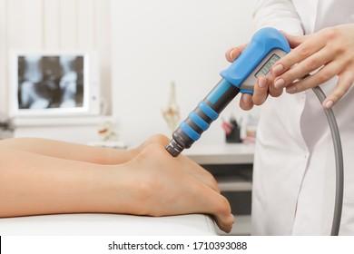 Extrakorporale Schockwave-Therapie ESWT.Effektive nichtchirurgische Behandlung.Physikalische Therapie bei Plantarfaszitis mit Schockwellen.Schmerzlinderung, Normalisierung und Regeneration, Stimulation des Heilungsprozesses.