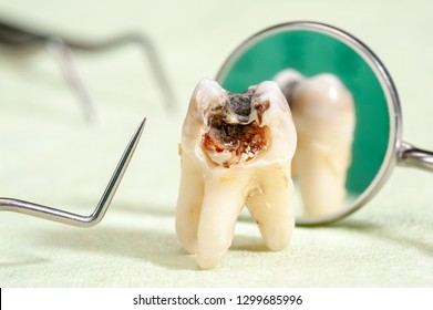 extracted molar tooth with caries and amalgam