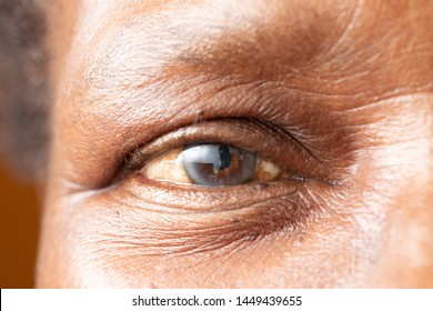 An extreme closeup view on the open eye of an older African man with a cataract. A white cloudy disc is seen in the iris, with room for copy.