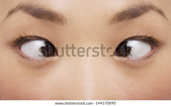 Extreme closeup of young woman cross-eyed