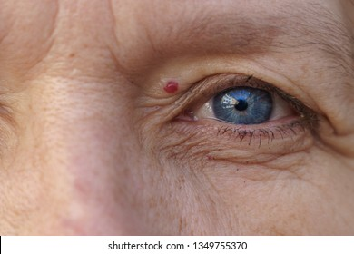 Extreme Cropped blue Eye of a middle-aged woman with  a treatment of hemangioma in a concept of ageing
