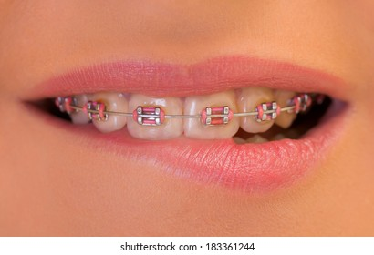 Extremely close up of a dental braces