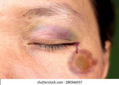 eye after accident or fight with bruise