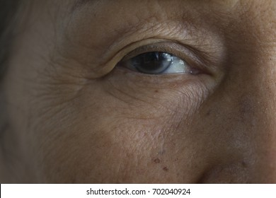 Eye of Asian elderly woman who has  surfer's eye, or pterygium or cataract.The symptom is a growth of pink, fleshy tissue on the conjunctiva, the clear tissue that lines to eyelids and covers eyeball.