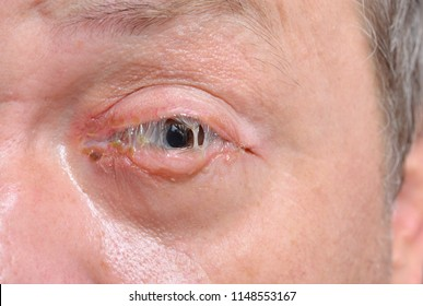 An eye with bacterial purulence conjunctivitis, also known as pink eye.