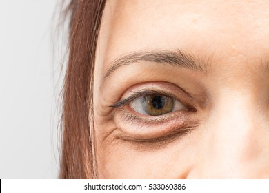 Eye bag of aged woman