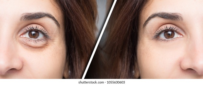 Eye bag before and after beauty treatment