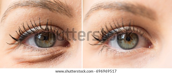 Eye bags before and after cosmetic treatment