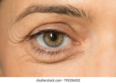 eye bags close up on woman face