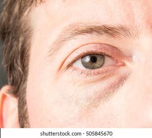 Eye bags and dark circles
