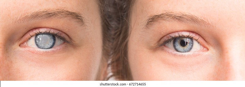 Eye before and after surgery with and without cataract