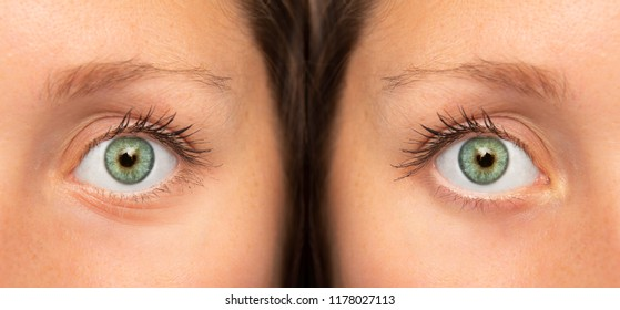 Eye before and after wrinkles treatment