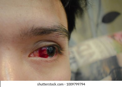 eye bleeding or conjunctiva hemorrhage in human