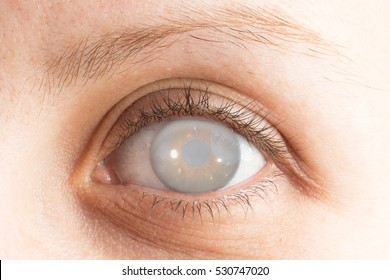 Eye with cataract and corneal opacification