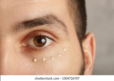 Eye cream treatment. Close up image of man eye and cream dots on the under eye area. Anti aging or dark circles prevention.