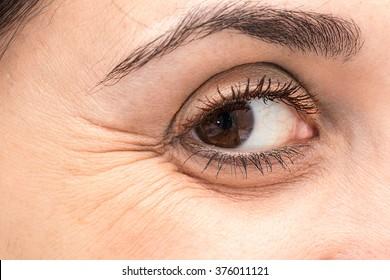 Eye with crow's feet