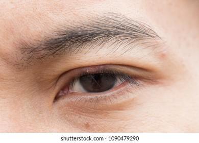 Eye disease hordeolum.