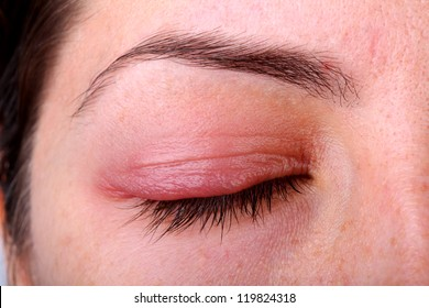 Eye diseases.. Closed woman's eye with sty.
