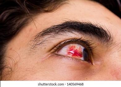 Eye hemorrhage showing blood in the conjunctiva