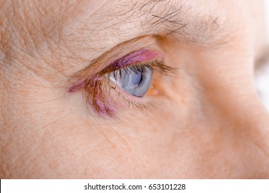 eye injured due to rupture of capillary, causing hematoma or bruising. It could also be conjunctivitis or other allergic eye inflammation