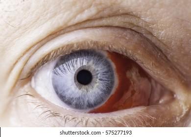 Eye Injury. Close up of a very red bloodshot eye.