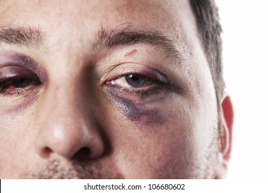 eye injury, male with black eye isolated on white. man after accident or fight with bruise