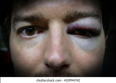 eye injury, . man after accident or fight with bruise