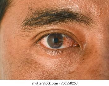 Eye pterygium in man